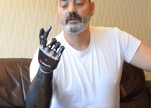 Киберпротез beBionic3 – будущее в вашей «руке»